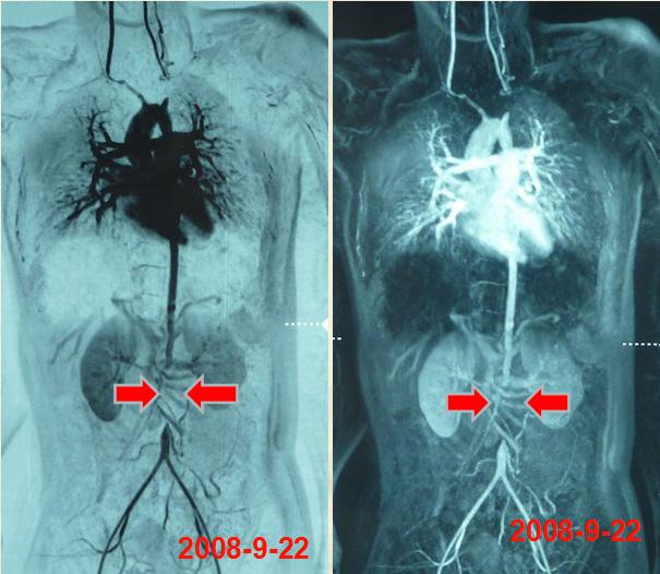 双颈动脉狭窄造影图片