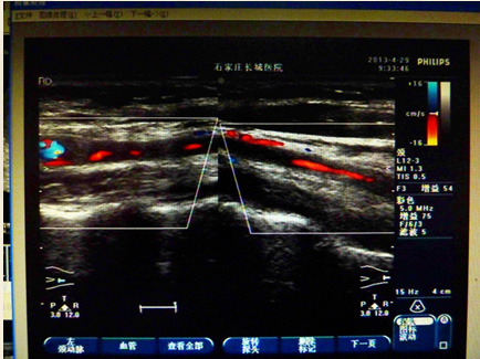 左侧颈动脉严重狭窄图片