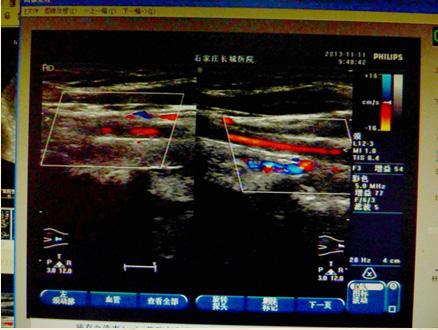 左侧颈动脉严重狭窄治疗图片